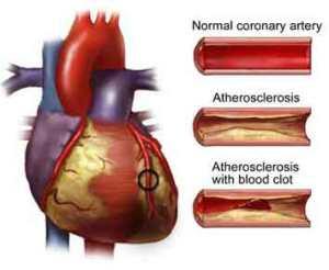 Atherosclerosis2